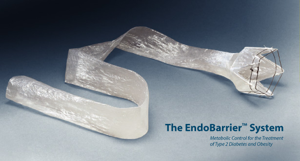 EndoBarrier Device Holds Promise for the Treatment of Type