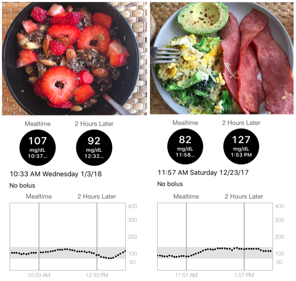 How I Loop: Two Years Using An iPhone App To Automate My Insulin