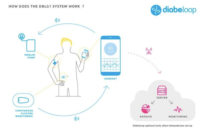 Diabeloop's Automated Insulin Delivery System to Launch In