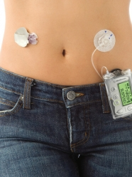 Fda Approves Medtronic Minimed 530g With Enlite Cgm Sensor
