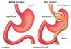 Metabolic surgery, bariatric surgery